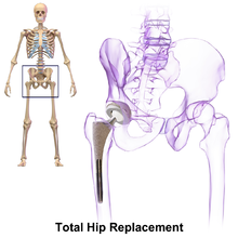 Post Hip Replacement – Case Study – Matrix Repatterning